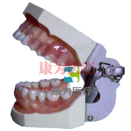 """""""康为医疗""""牙龈病模型"""