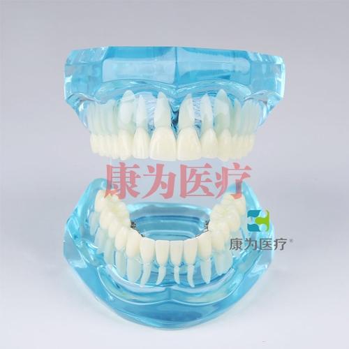 """""""康为医疗""""舌侧托槽演示模型"""