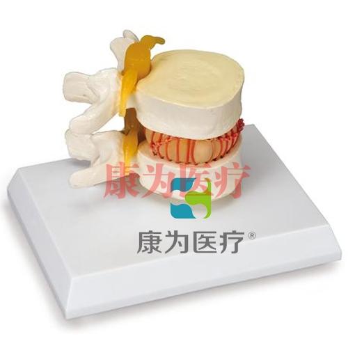 腰椎间盘突出症人体模型