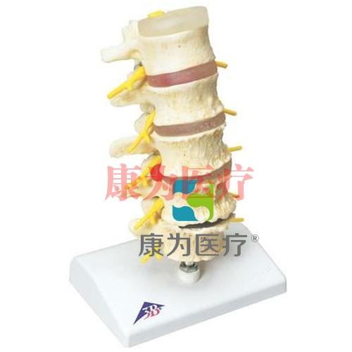 椎间盘脱垂及脊椎退行性变威廉希尔