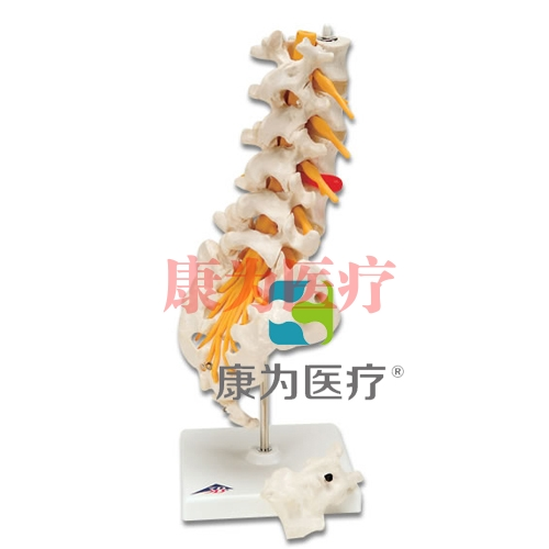 腰脊柱,有脊外侧椎间盘脱出