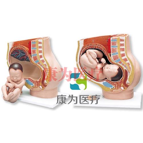 妊娠骨盆模型,3部分