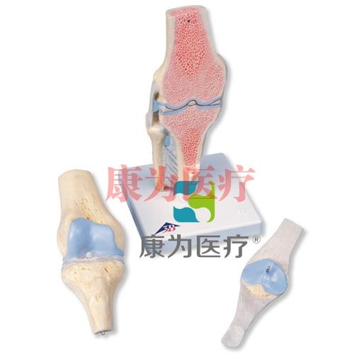 膝关节截面威廉希尔,3部分