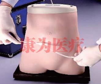 腹膜透析威廉希尔