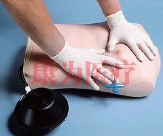 气胸处理模型