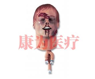 成人创伤头部气管插管训练威廉希尔(ALS Trauman Head)