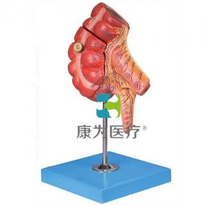 """""""康为医疗""""盲肠和阑尾模型"""