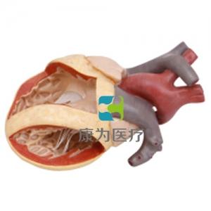 """""""康为医疗""""心脏房室管畸形模型"""