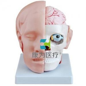 """""""康为医疗""""头解剖附脑动脉betway必威手机版中文版"""