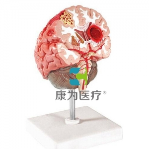 """""""康为医疗""""脑中风betway必威手机版中文版"""