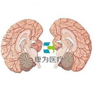 """""""康为医疗""""左右脑带脑动脉分布betway必威手机版中文版 2部件"""