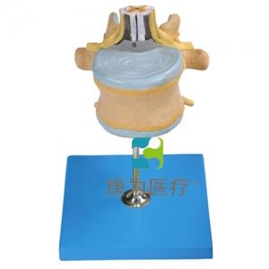 """""""康为医疗""""腰椎附脊髓与马尾神经放大模型"""