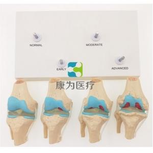 """""""康为医疗""""四阶段病变膝关节模型,4阶段膝关节模型"""