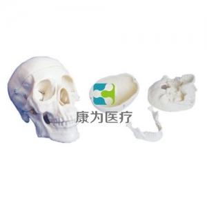 """""""康为医疗""""三部分头颅骨模型"""