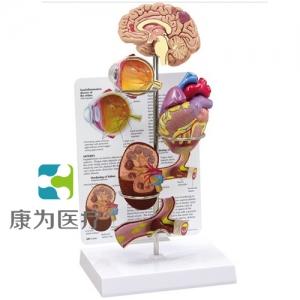 """""""康为医疗""""医患关系沟通模型-微型脑、眼、心、肾及动脉模型 (医学指导模型)"""