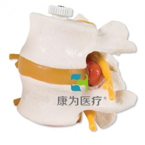带椎间盘脱出的2块腰椎,活动安装