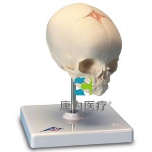 胎儿颅威廉希尔,置于基架