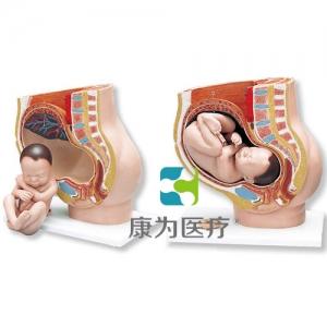 妊娠骨盆威廉希尔,3部分