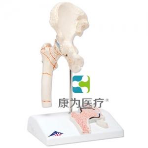 大腿骨折和髋关节炎威廉希尔