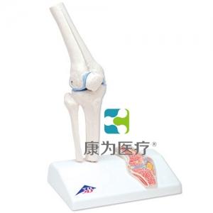 小型膝关节带截面部分
