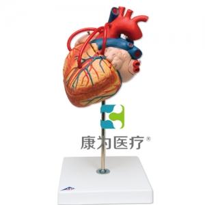 心脏搭桥的心脏威廉希尔,实物的 2倍,4部分