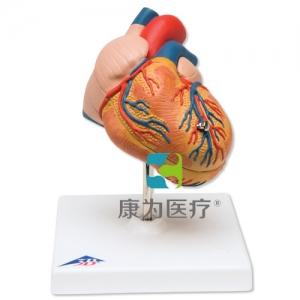 经典心脏威廉希尔,呈左心室肥大,2部分