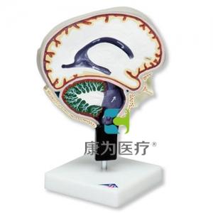 脑脊液循环威廉希尔