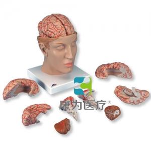 豪华型脑威廉希尔带颅底动脉,8部分