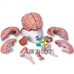豪华型脑威廉希尔带动脉,9部分
