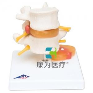 椎间盘脱出腰脊柱模型