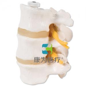活动安装3块腰椎